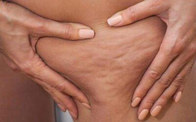 Cellulite e adiposità localizzate, cause e soluzioni attraverso la Medicina Estetica